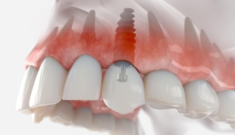 tandimplantat behandling