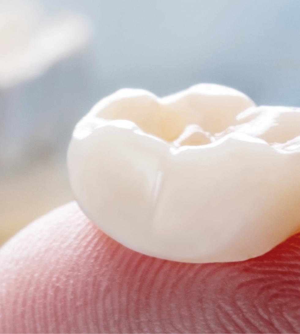 behandling med tandimplantat i Stockholm, göteborg